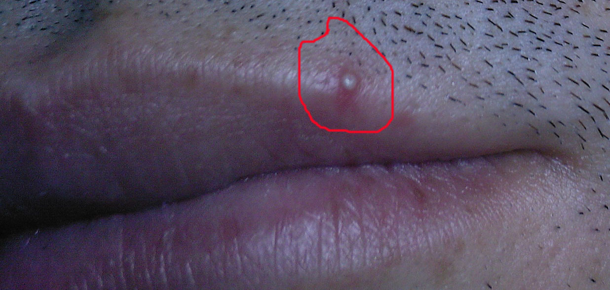 Cold Sore, Ingrown Hair, Or Herpes 1